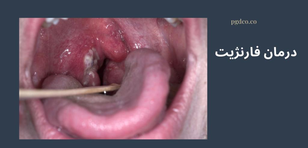 درمان فارنژیت